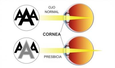 ojo_presbicia_vista_cansada_cirugia_operacion_badajoz_madrid_evora