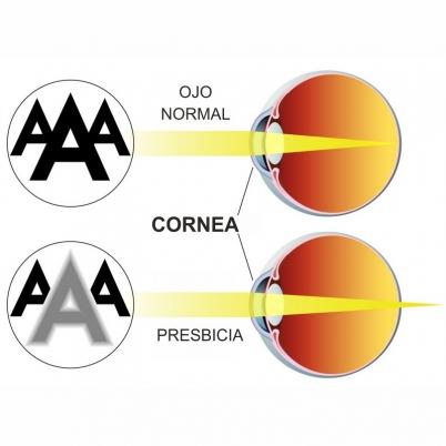 explicacion_oftalmologos_presbicia_vista_cansada_badajoz_madrid_evora_