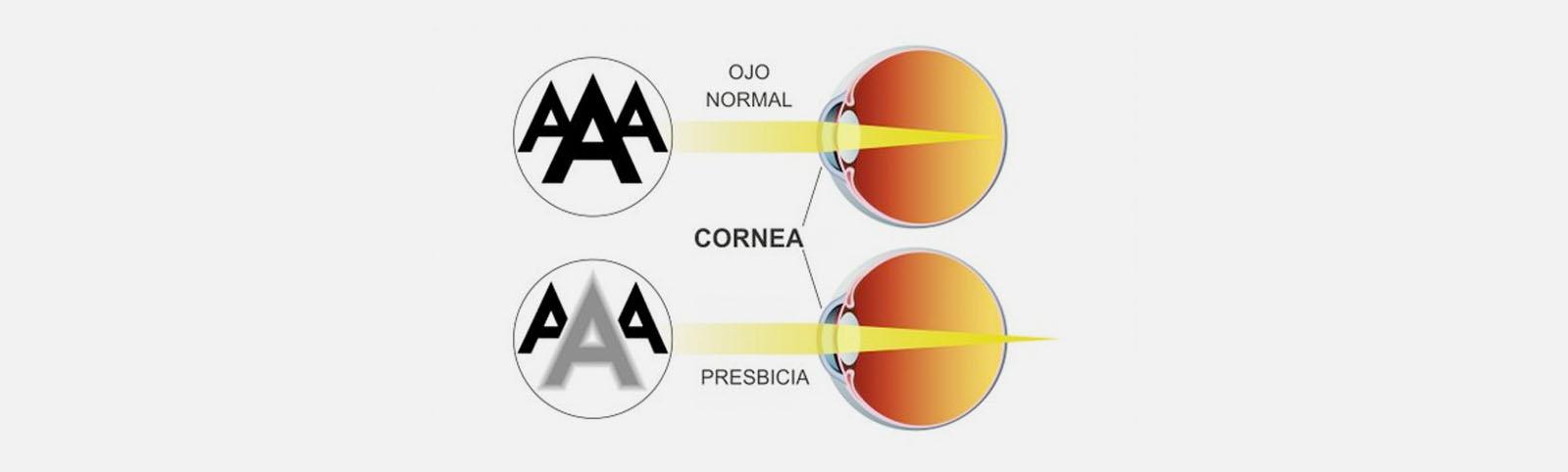 f97e8d1130 explicacion_oftalmologos_presbicia_vista_cansada_badajoz_madrid_evora_